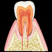 CO(ごく初期の虫歯)