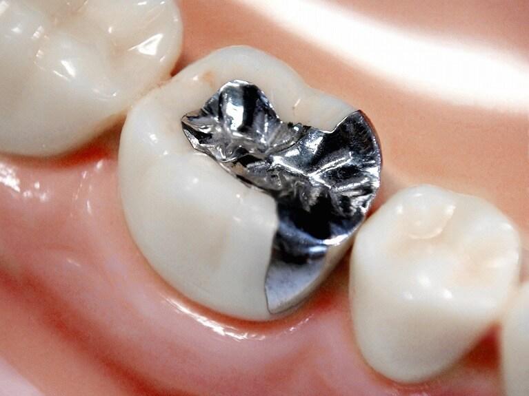 保険の銀歯が抱えるリスクについて