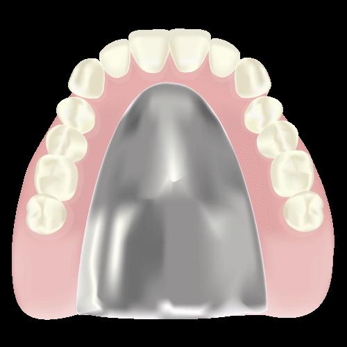 快適な着け心地の「金属床義歯」