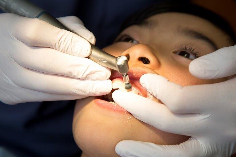 歯科医院で行うプロフェッショナルケア