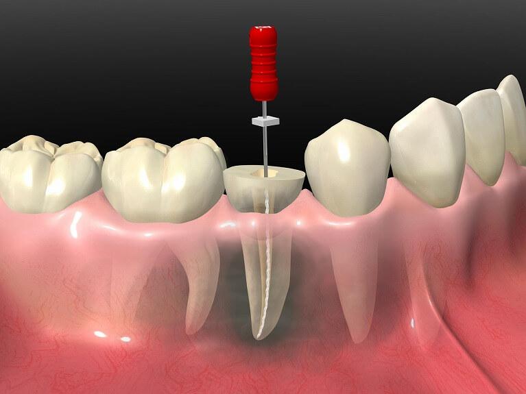 痛みを取り、歯を残す最終手段として行う歯の神経の治療
