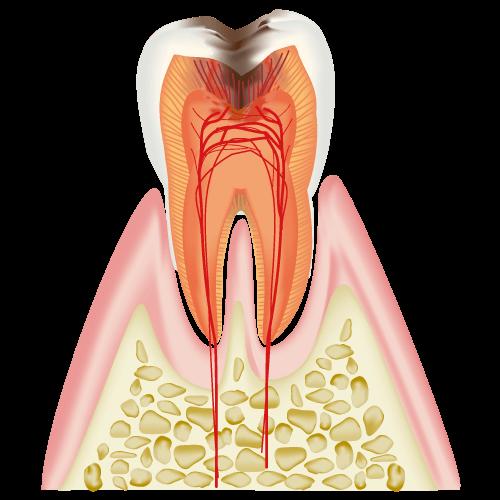 歯の神経の治療(根管治療)はどういうときに行うのか