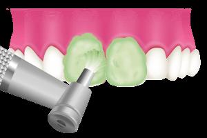ホワイトニングと歯のクリーニングの違い